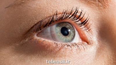 ارتباط اختلالات بینایی با افزایش ریسک مرگ و میر